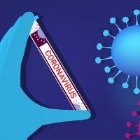 Принять к вычету НДС по тестированию на COVID-19 можно по чеку и счету-фактуре